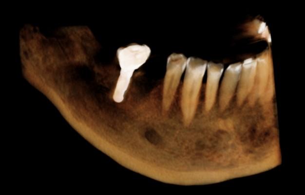3D Implantat